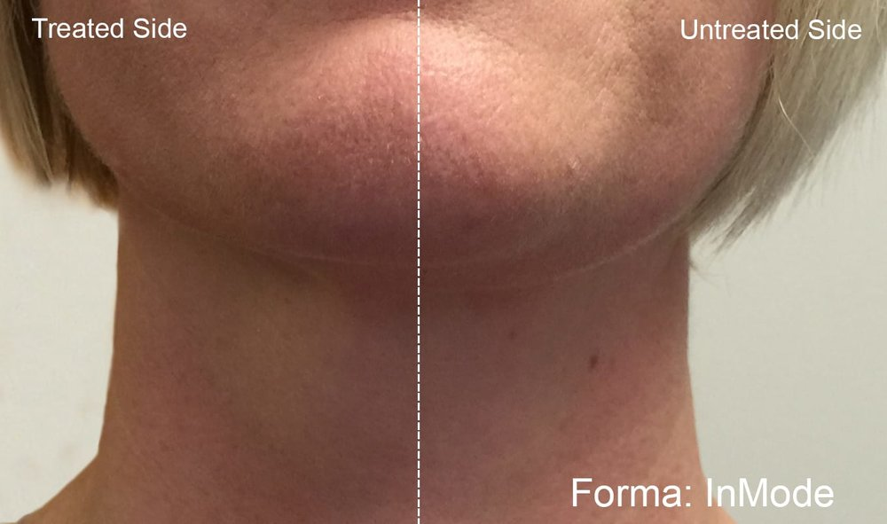 Before & After Forma Treatments - results in just 10 minutes