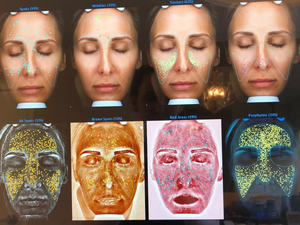 #SkinBabe Molly Boudreault shows us her skin Complexion Analysis.The system measures variables that contribute to aging including brown spots, reds, wrinkles, pore size and more.
