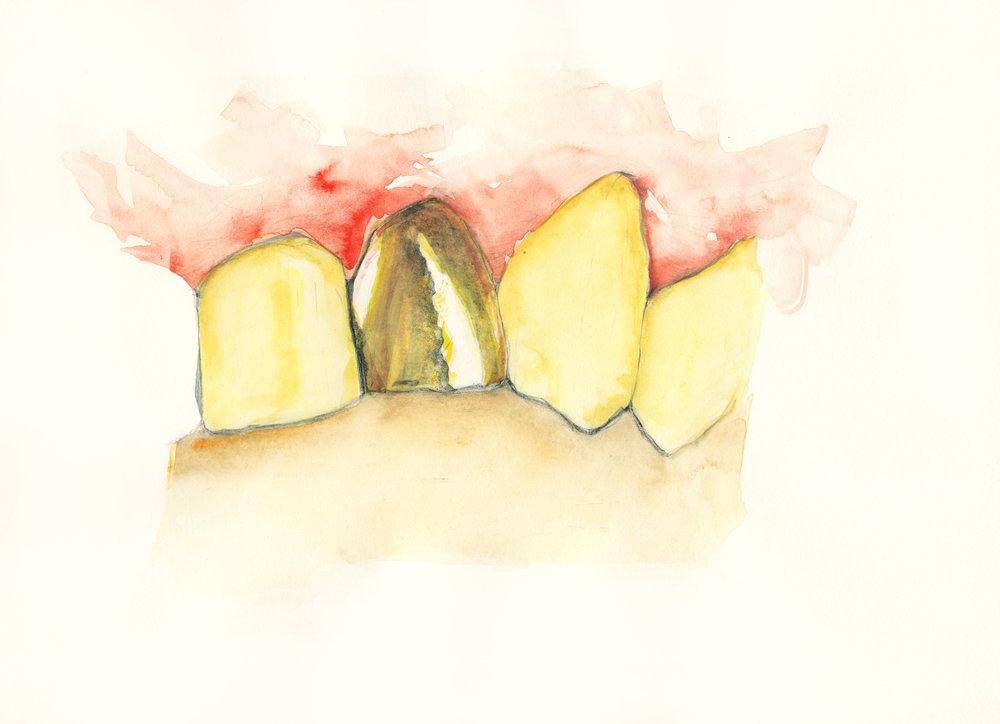 Goldtooth in bite_.jpg