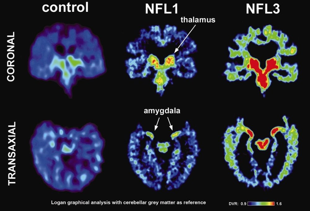 NFL Brains CTE.jpeg