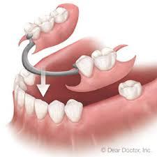 partial denture.jpg