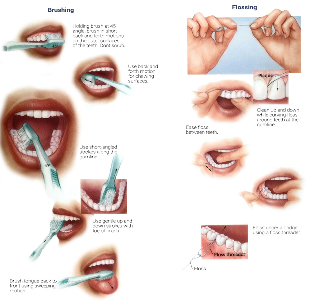 Techniques-of-Oral-Hygiene.jpg