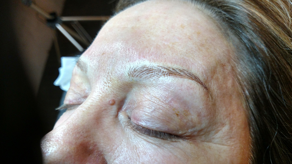 After MIcroblading Only
