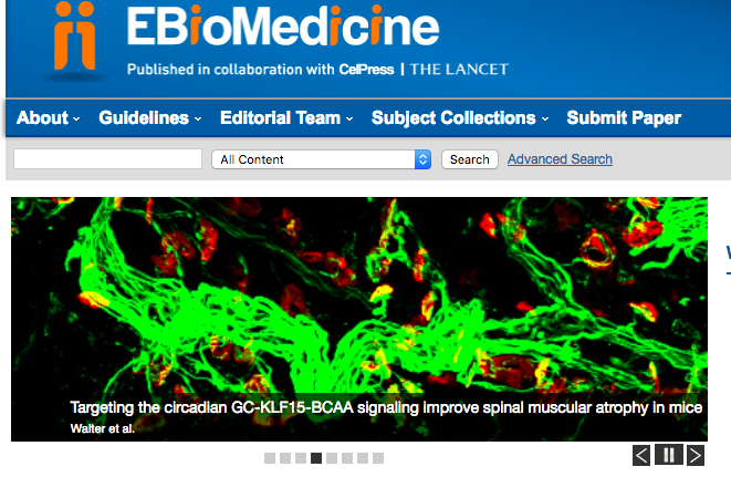Our image of NMJs is highlighted on the homepage carousel of EBioMedicine. - May 29th 2018
