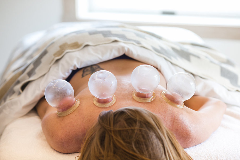 Cupping Main