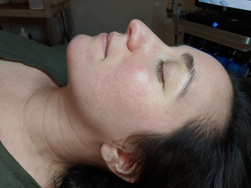 Acne Clinic 4