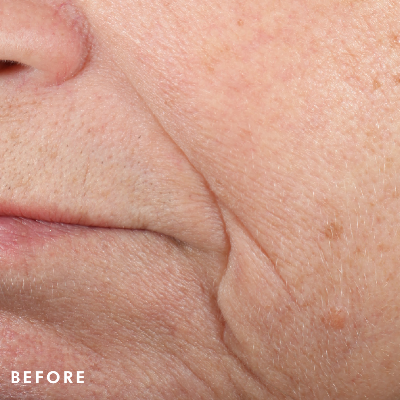 Triple-Lipid-Restore-Before-Image-SkinCeuticals.png
