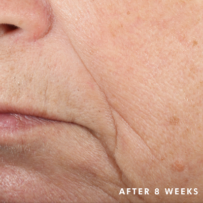 Triple-Lipid-Restore-After-Image-SkinCeuticals.png