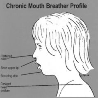 [Image: mouthbreather+profile.png]