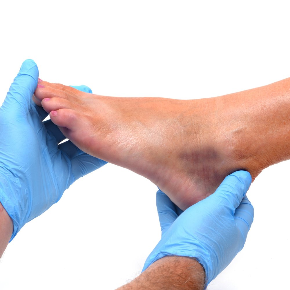 Foot Injuries | Physical Therapy