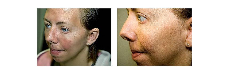 bionaknenhoito-kuva5.jpg