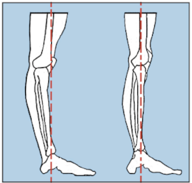 This image shows a knee in a hyperextended position and in an extended position