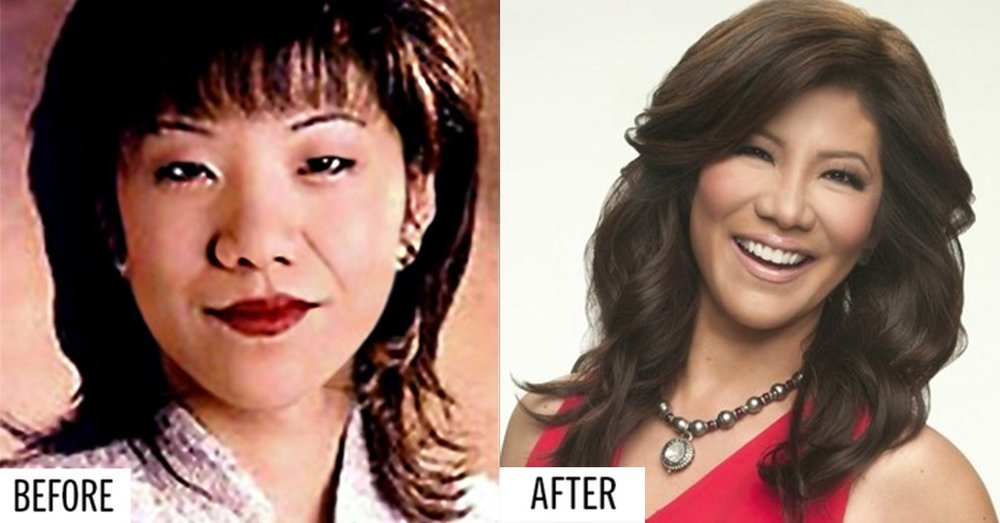 Julie Chen before and after her cosmetic eye surgery.