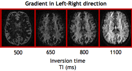 Inversion-recovery prepared diffusion-weighted images.