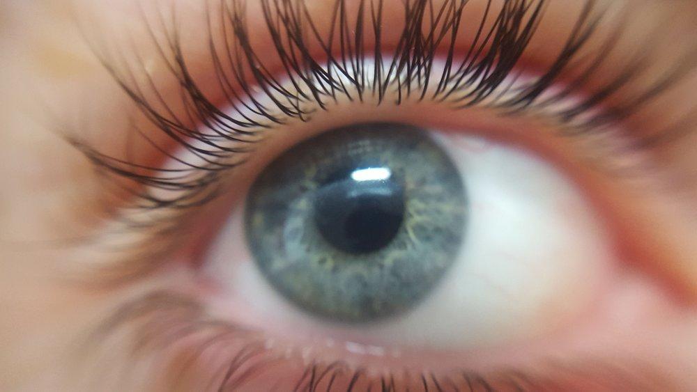 Glaucoma Surgery -