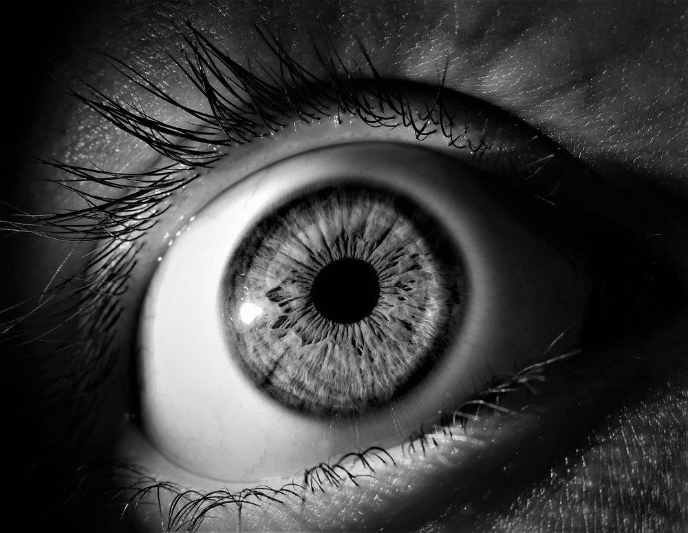 Amblyopia Eyes