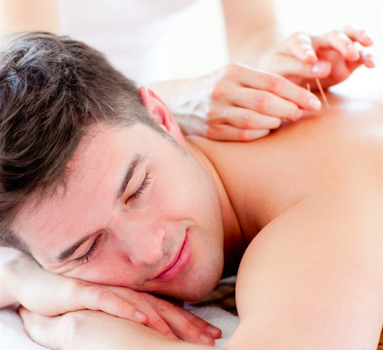A man relaxing while undergoing acupuncture treatment