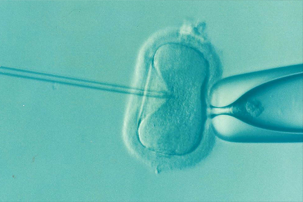 Fertility-Acupuncture-with-IVF.jpg