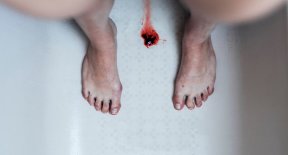 You may see clumps of blood or blood clots in your period, which is normal