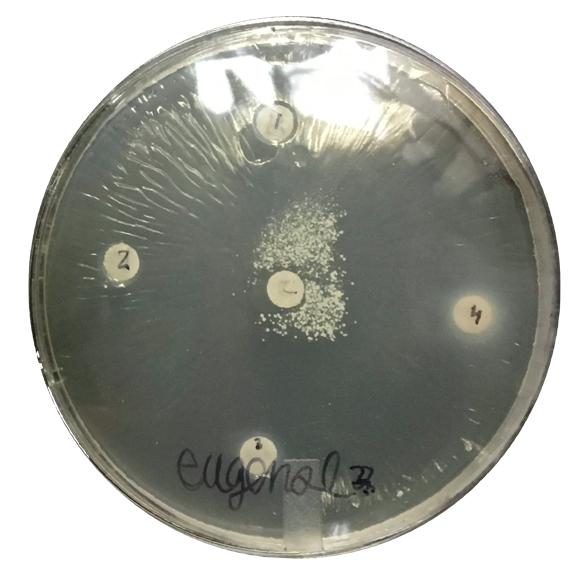 Figure 5. Example Petri dish with EU and oral bacteria.