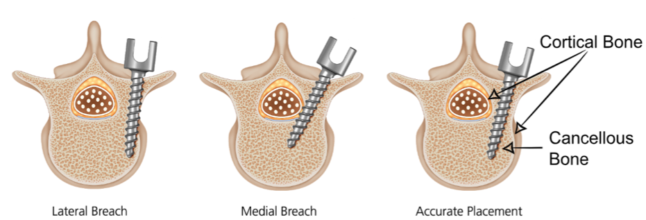 Figure 2. Higher density cortical (compact) bone forms the exterior of the vertebra and surrounds the spinal cord.  An accurately placed pedicle screw remains in the lower density cancellous (spongy) bone within the vertebra. When cortical bone is cannulated (using the probe to create a pilot hole) it results in lateral or medial breaches (SpineGuard, 2018).
