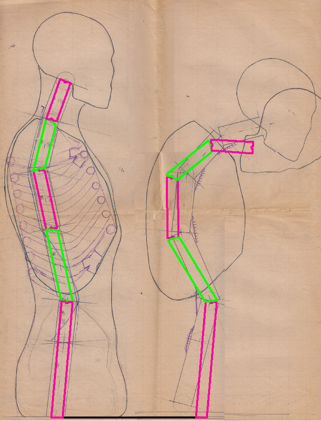 The geometry of the spinal segments in the upright and slumped positions