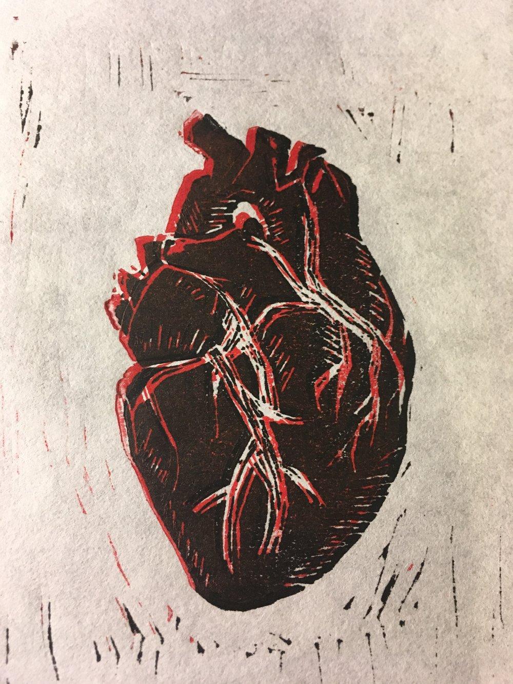 Left Sided Heart