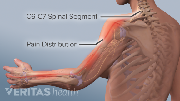 Adult-Spine-radiculopathy-c6-c7.png