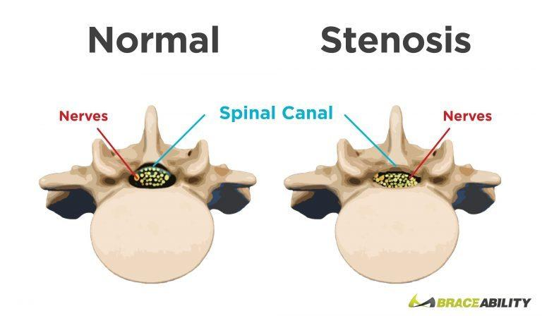 cervical stenosis.jpg