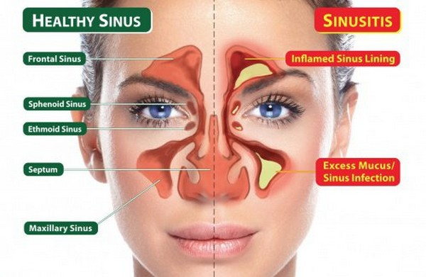How-To-Clear-Your-Sinuses-In-20-Seconds.jpg