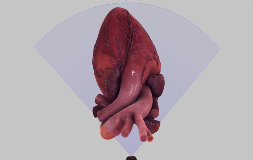 Image: TEE Simulator ©  HeartWorks