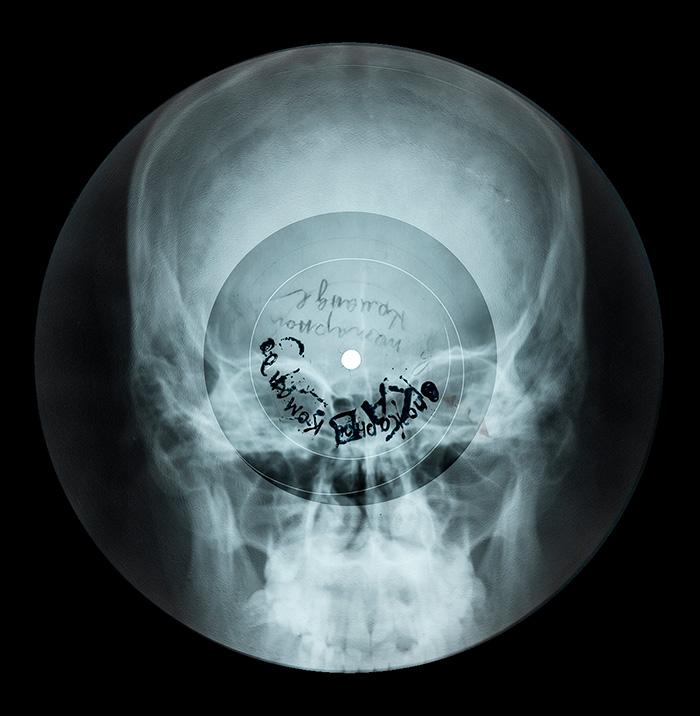 Bones-skull