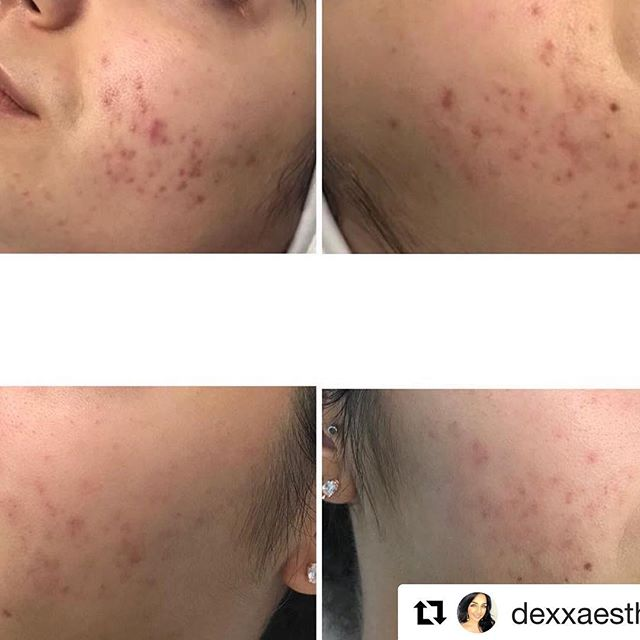 ・・・ Here are UNTOUCHED before (first row) & after (second row) photos of my clients skin after 5 Dermarolling treatments. 💉 . My client started her treatments on March 14, 2018. She had acne scarring (2 year old scars) papules and pustules before she started. She did a series of 5 treatments 4 weeks apart with proper home care. 💆🏻‍♀️ . August 10, 2018 — 5 months later and her scarring is slowly diminishing (keep in mind they were old scars!) 🤭 and has no active acne present. She will be carrying on with her treatments so that she can achieve optimal results. 💁🏻‍♀️ . There is no such thing as a quick fix 🙅🏻‍♀️ but with time and patience you'll achieve the results you desire. 💕 . . Call today to book a complimentary consultation . #medicalaesthetician #treatyourself #loveyourskin #laser #laserhairremoval #microdermabrasion #chemicalpeels #commitment #facials #dermalogica #dermaquest #biophora #dermaplaning #dermarolling #microneedling #skintightening #bodycontouring #facials #dermo28 #ipl #photofacial #photorejuvenation #aesthetician #esthetician