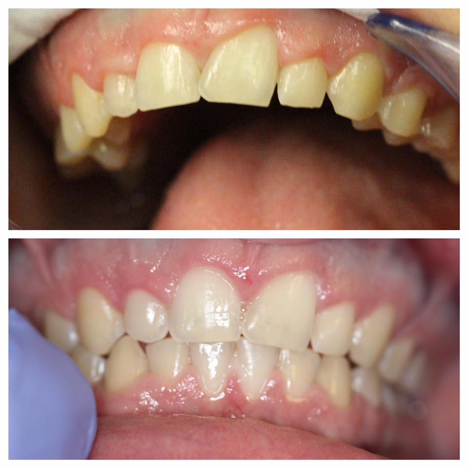 Sometimes the gum line needs altering, not the teeth! Correct uneven gums or extended gums, like the patient for a polished look.