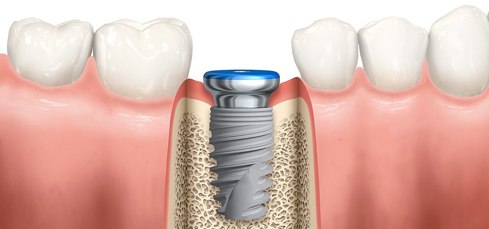 replace one to many teeth or support a denture with dental implants, now offering complimentary consulations and 3-d scans (a $380+ value)   learn more here