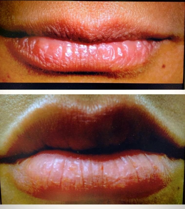 Juvederm (before and after)