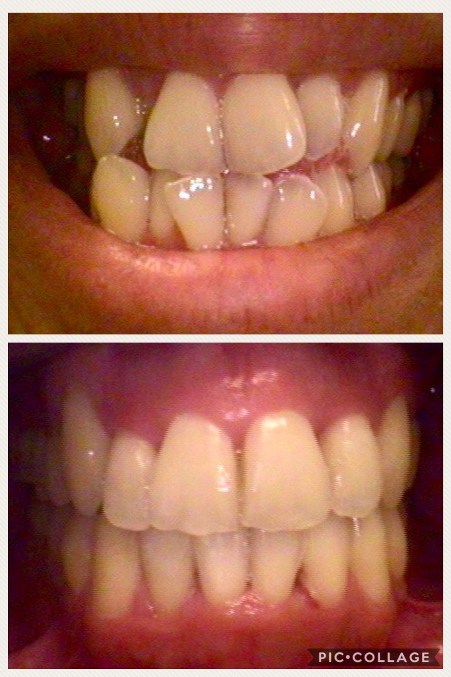 Ortho (before and after)
