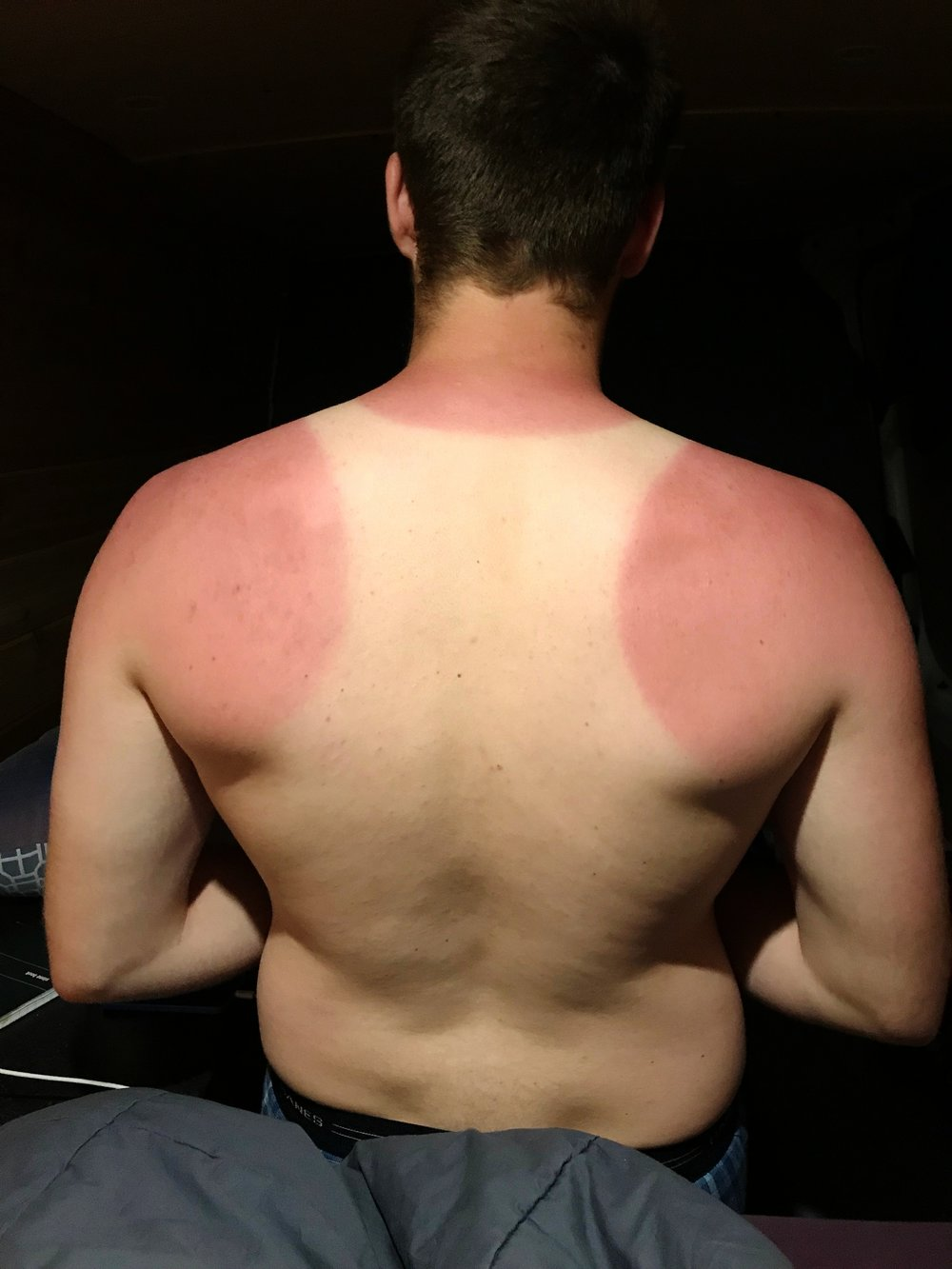 Ian got an insane sunburn one day when we went running. Definitely a do where sunscreen if your van breaks down.