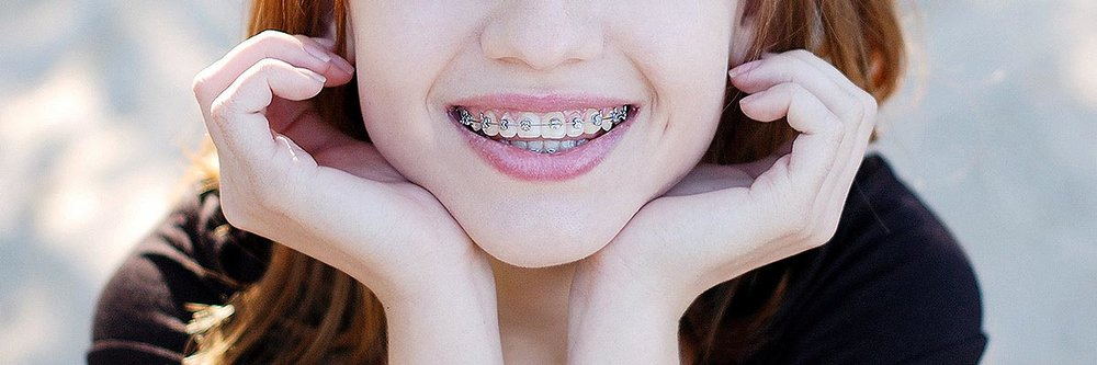 Orthodontist Encinitas