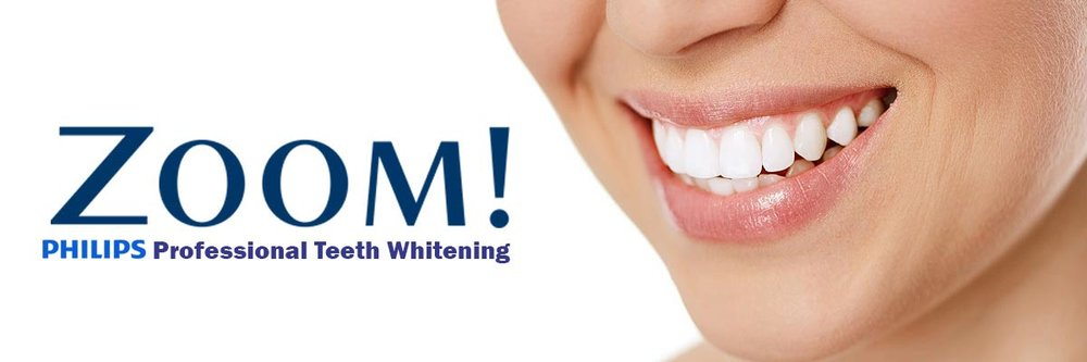 Teeth Whitening in Encinitas