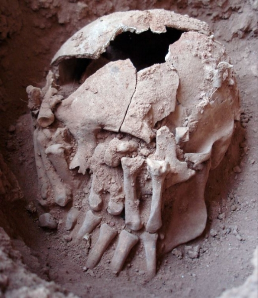 9,000 year old skull with amputated hands placed over the face. From the paper 'The Oldest Case of Decapitation in the New World (Lapa do Santo, East-Central Brazil)' by Strauss  et al.  (2015), published in  Plos One