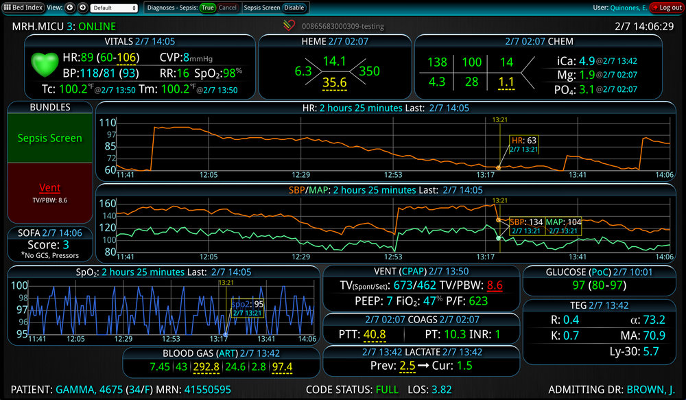 Ventilator bundle - graph view