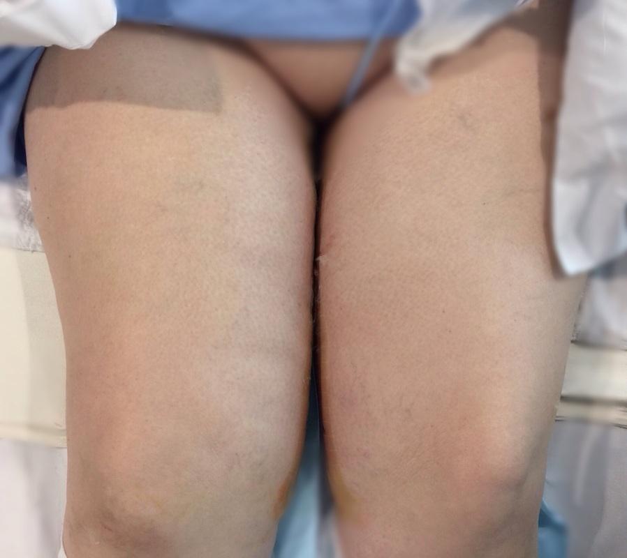 thigh2.jpg