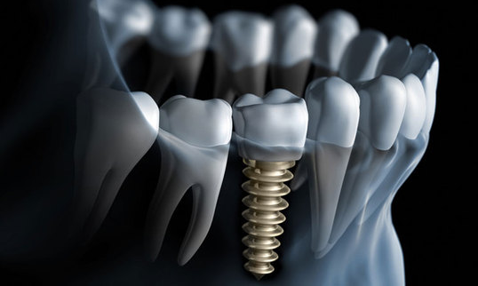 Implant Surgery & Tooth Replacement
