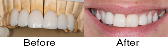 Dentexcel_bridges6.jpg
