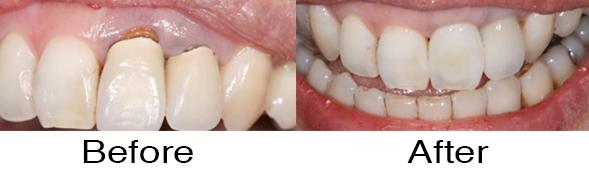 Dentexcel_Crown3.jpg