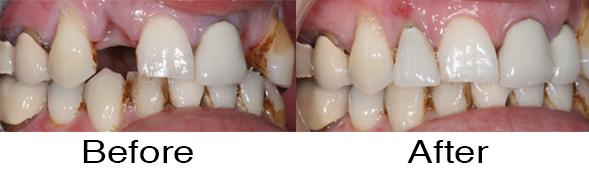 Dentexcel_Dental_Implant1.jpg