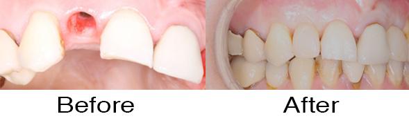 Dentexcel_Dental_Implant2.jpg