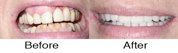 Dentexcel_Dental_Implant3.jpg