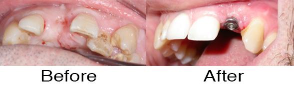 Dentexcel_Dental_Implant4.jpg